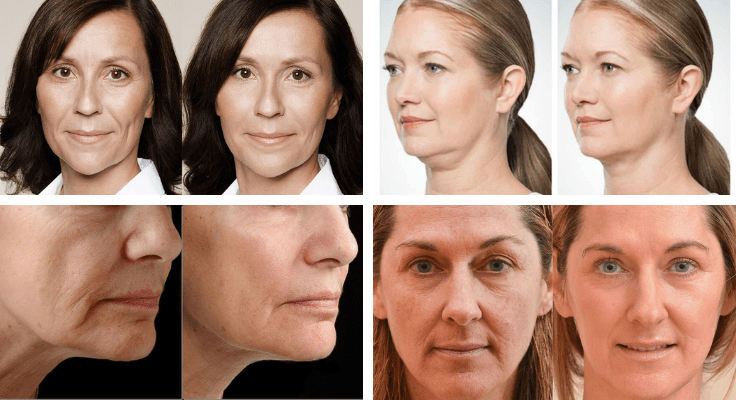 faces of women before and after med spa