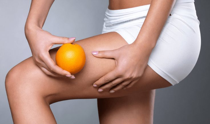 ozone therapy for skin in cellulite treatments