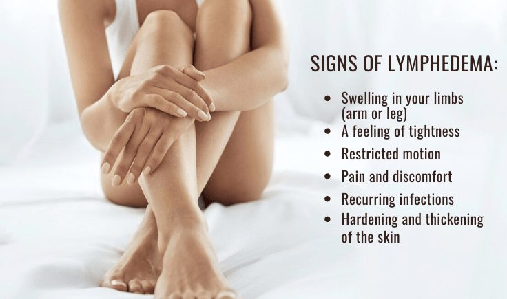these signs to find if you have lymphedema