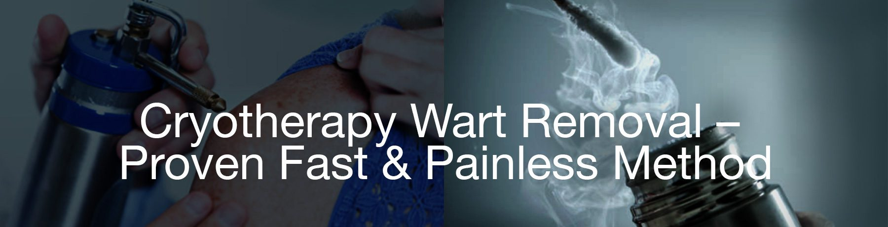 cryotherapy wart removal