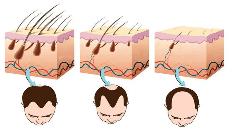 scalp massage hair loss benefits increases blood flow