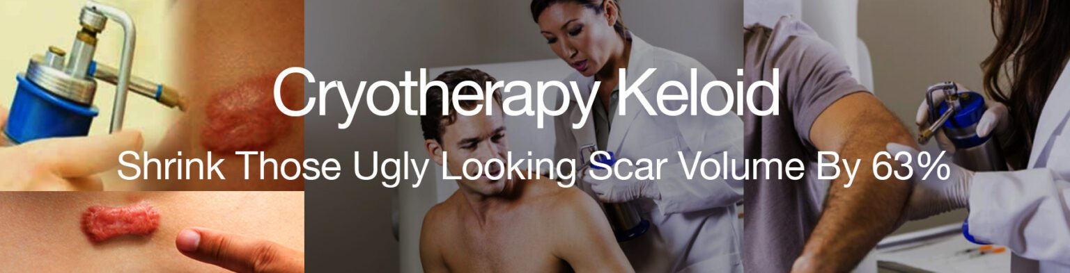 Cryotherapy Keloid