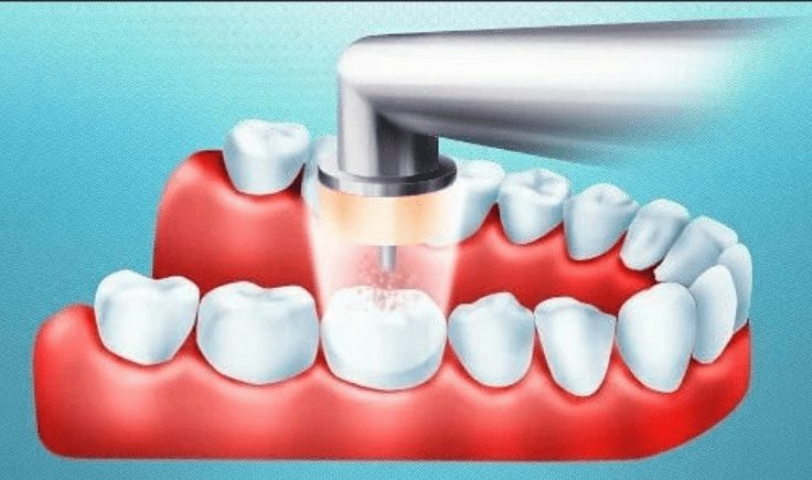 how does ozone therapy in dentistry work