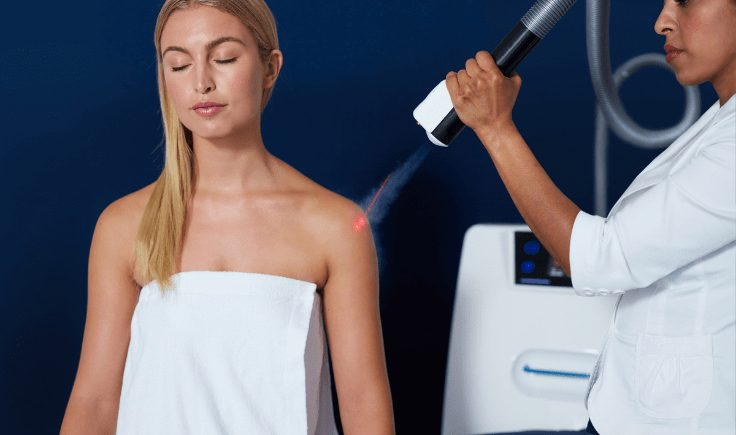 how much does cryotherapy keloid removal cost