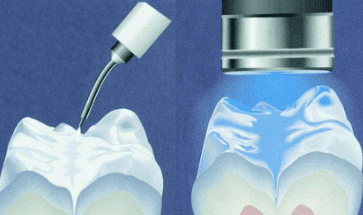 is ozone therapy in dentistry safe