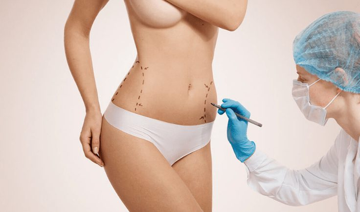 liposuction and post op lymphatic massage