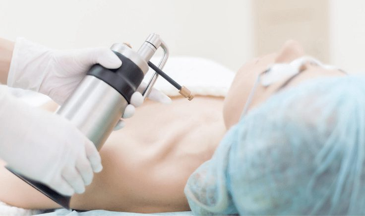 main limiting factor of cryotherapy for keloid treatment