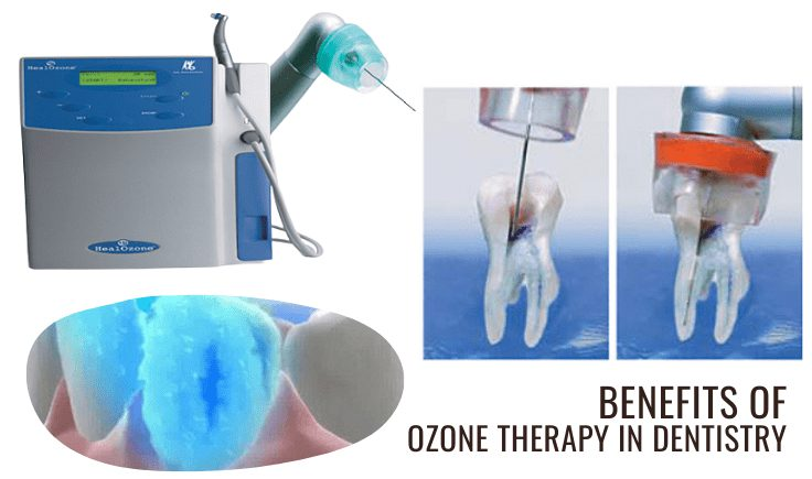 what are the benefits of ozone therapy in dentistry