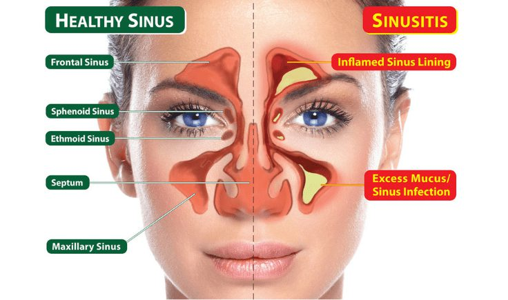 what causes sinus congestion