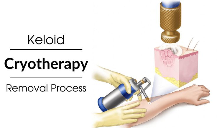 what is the working mechanism of cryotherapy keloid removal process
