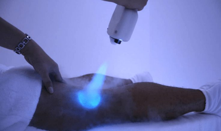 why would you choose cryotherapy over other treatment methods