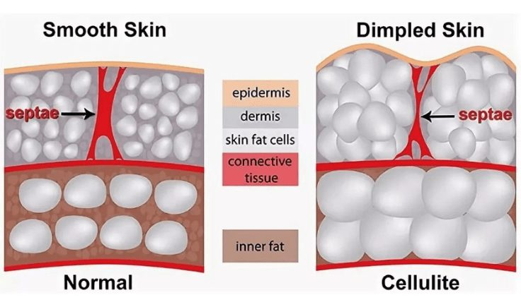 lymphatic massage for cellulite what is cellulite
