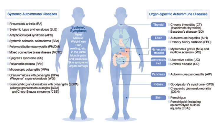cryotherapy for arthritis solution #2 arthritis-related auto-immune diseases